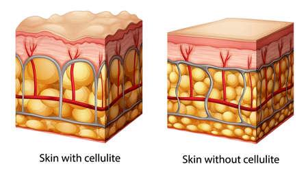 Ilustración de la sección transversal que muestra la piel celulitis