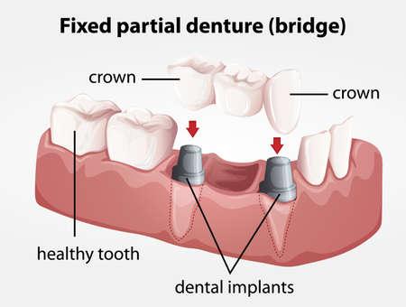 dentier: Illustration d'un pont prothèse partielle fixe Illustration