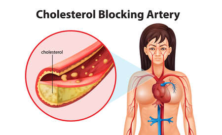 cholesterol: Illustration showing the process of ateriosclerosis Illustration