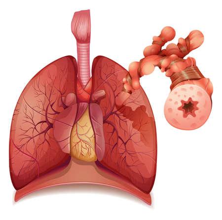 asma: Ilustración que muestra la inflamación del asma bronquial causando