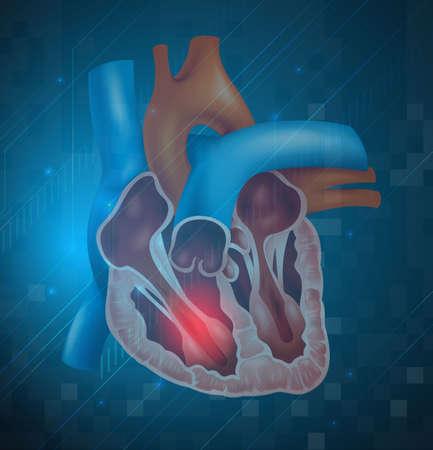 kammare: Illustration av en hjärtinfarkt Illustration