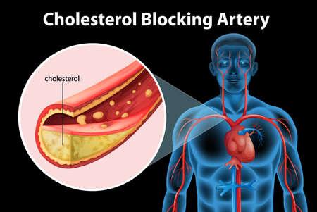 Illustratie van het proces van ateriosclerosis