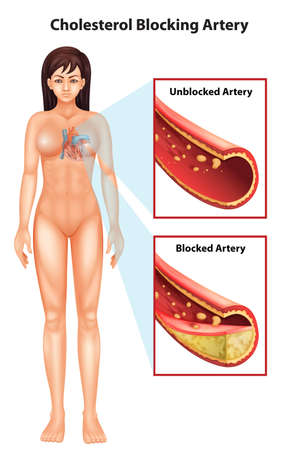 Illustration showing the process of ateriosclerosis Vector