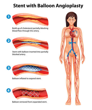 good cholesterol: Illustration of stent angioplasty procedure