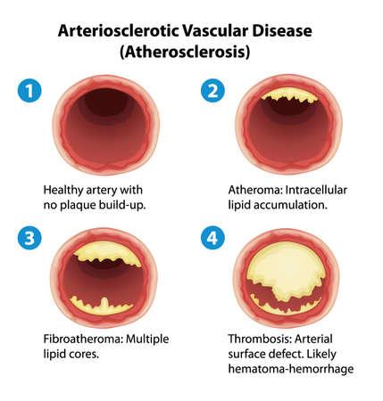 Illustration montrant le processus d'artériosclérose Vecteurs