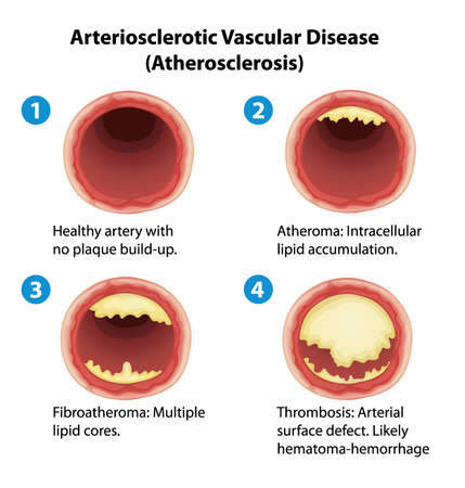heart attack: Illustration showing the process of ateriosclerosis Illustration