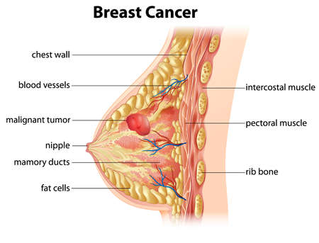 Przekrojem, przedstawiającym tworzenie raka piersi