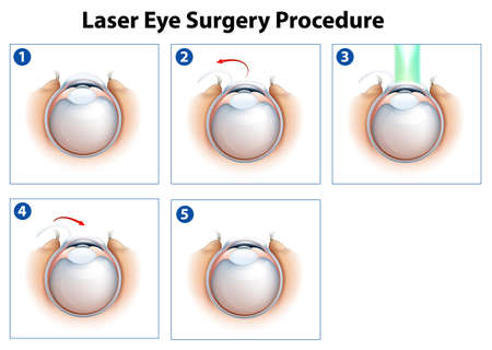 hyperopia: Illustration showing a laser eye surgery procedure