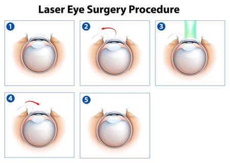 miopia: Illustrazione che mostra una procedura di chirurgia dell'occhio del laser