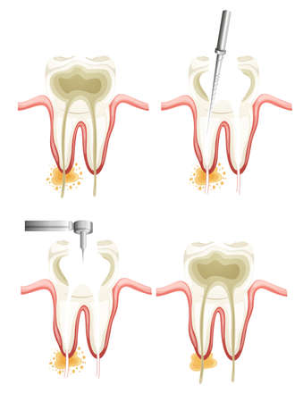 tooth root: Illustration showing a root canal procedure