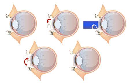 miopia: Illustrazione di una correzione degli occhi laser Vettoriali