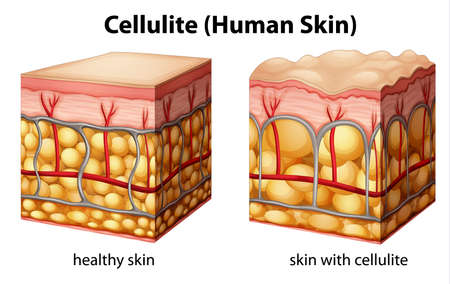 cellulite: Illustration of skin cross section showing cellulite Illustration
