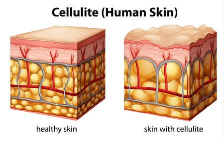 tejido: Ilustraci?n de la secci?n transversal que muestra la piel celulitis