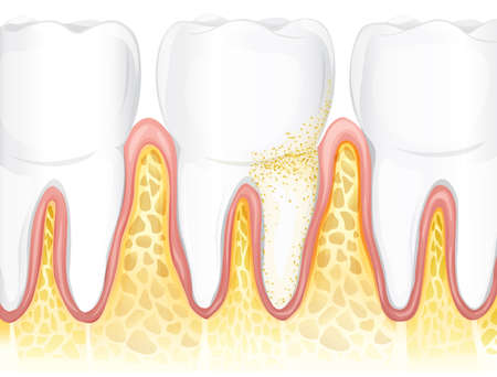 tissues: Illustration showing the teeth Illustration