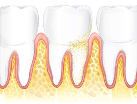 molares: Ilustración que muestra los dientes