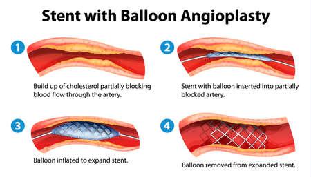angina: Illustration of stent angioplasty procedure