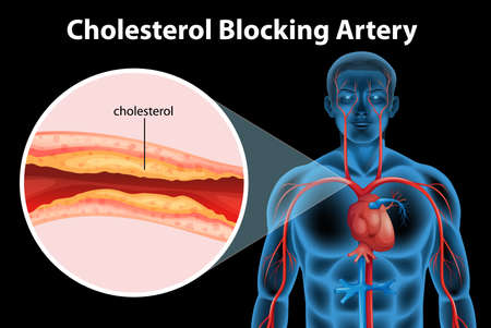 Illustration showing the process of ateriosclerosis Illustration