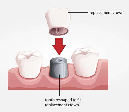 cemented: Ilustraci�n de un procedimiento de la corona dental Vectores
