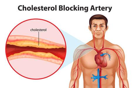 angor: Illustration montrant le processus d'art�rioscl�rose