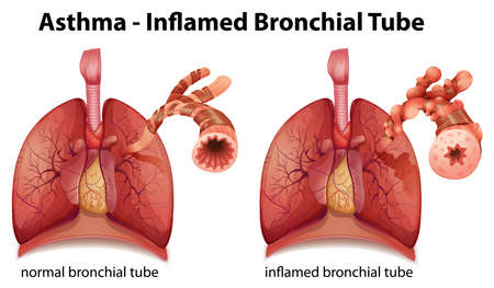respiratory: Illustration showing the inflamation of the bronchus causing asthma