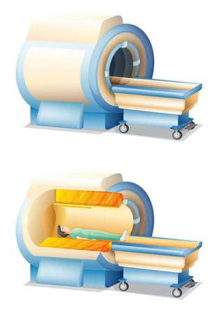 Ilustración de la máquina de resonancia magnética