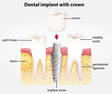 bone anatomy: Illustration showing the dental implant with crown Illustration