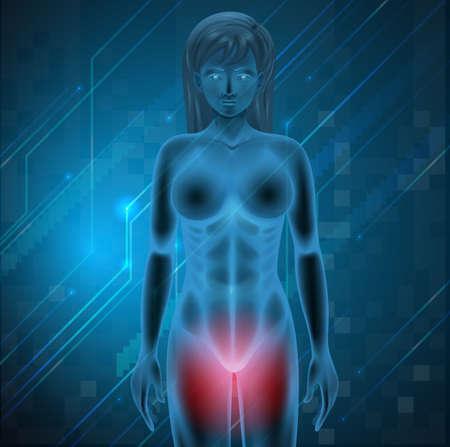 uretra: Ilustraci�n que muestra el dolor menstrual
