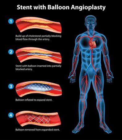 fisiologia: Ilustra��o do procedimento de angioplastia com stent Ilustração