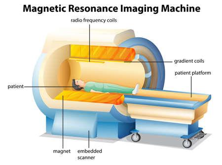 Ilustración que muestra la máquina de resonancia magnética