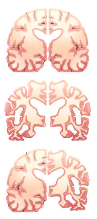 temporal: Illustration of the brain