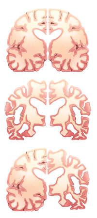 occipital: Illustration of the brain