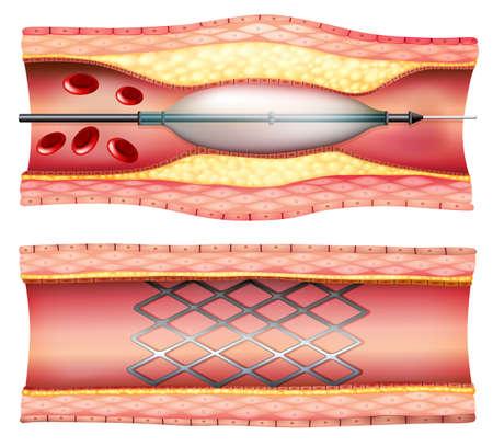 Illustratie van de stent angioplastie op een witte achtergrond