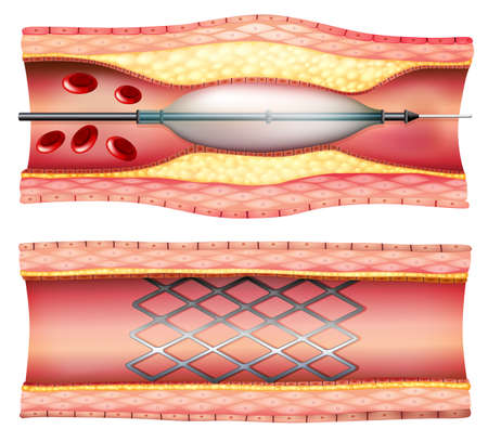 Illustration of the stent angioplasty on a white background