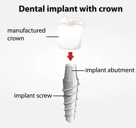 dental impression: Illustration of a dental implant with crown on a white background Illustration