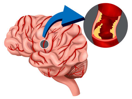 brain stroke: Illustration of a Blood Clot concept in the brain on a white background