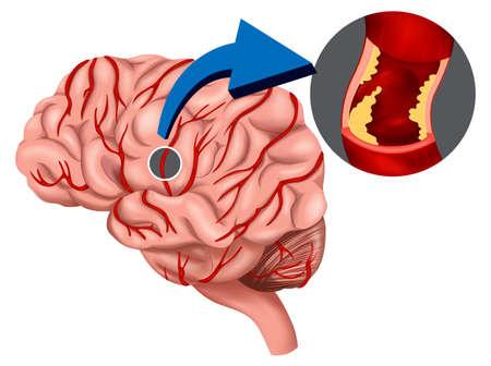 hemorragia: Ilustraci�n de un concepto co�gulo de sangre en el cerebro en un fondo blanco