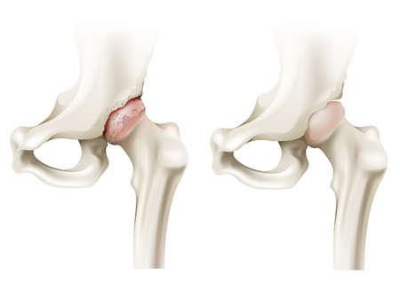 osteoarthritis: Illustration of the hip arthritis on a white background