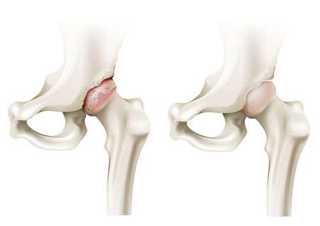 artritis: Ilustración de la artritis de cadera sobre un fondo blanco