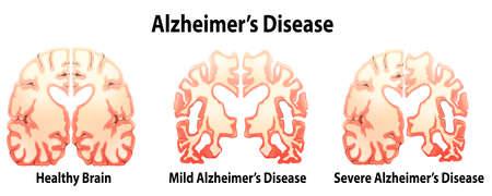 흰색 배경에 알츠하이머 병의 그림 일러스트