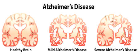 Illustration of the alzheimers Disease on a white background Çizim
