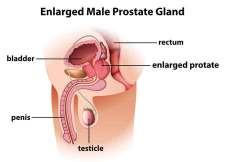 Illustration of an enlarged male prostate gland on a white background Vector
