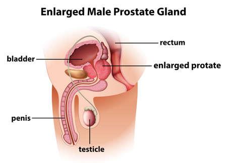 enlarged: Illustrazione di una allargata prostata maschile su uno sfondo bianco