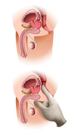 biopsia: Ilustraci�n de un c�ncer de pr�stata en un fondo blanco