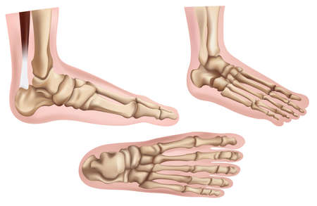 distal: Illustration of the foot bones on a white background
