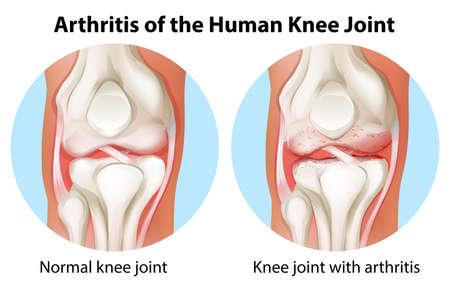 Illustration einer Arthrose des menschlichen Kniegelenks auf weißem Hintergrund