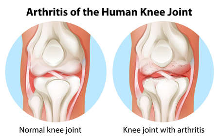 artrosis: Ilustración de una artritis de la articulación de la rodilla humana sobre un fondo blanco