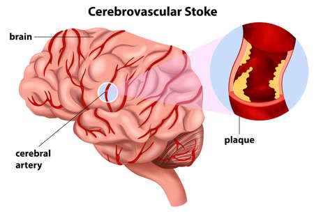 ailment: Illustration of the Cerebrovascular Stroke on a white background Illustration
