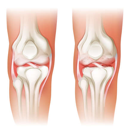 osteoarthritis: Illustration of the human knee arthritis on a white background