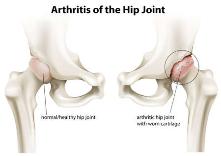 osteoarthritis: Illustration showing the arthritis of the hip joint on a white background