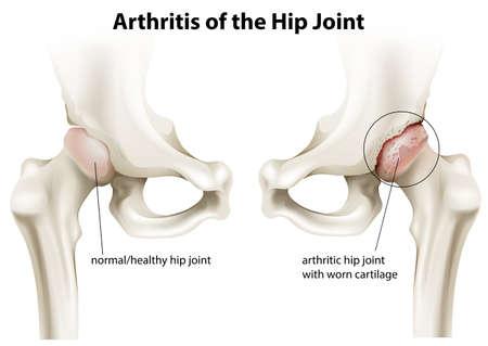 artrosis: Ilustración que muestra la artritis de la articulación de la cadera sobre un fondo blanco Vectores